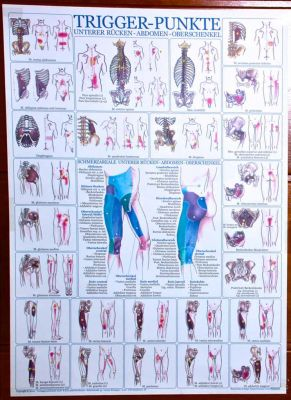 Trigger point Wallcharts, single (German)